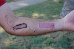Gila Monster Bite